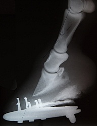 Laminitis, Rotation of the Coffin Bone Laminitis Xray